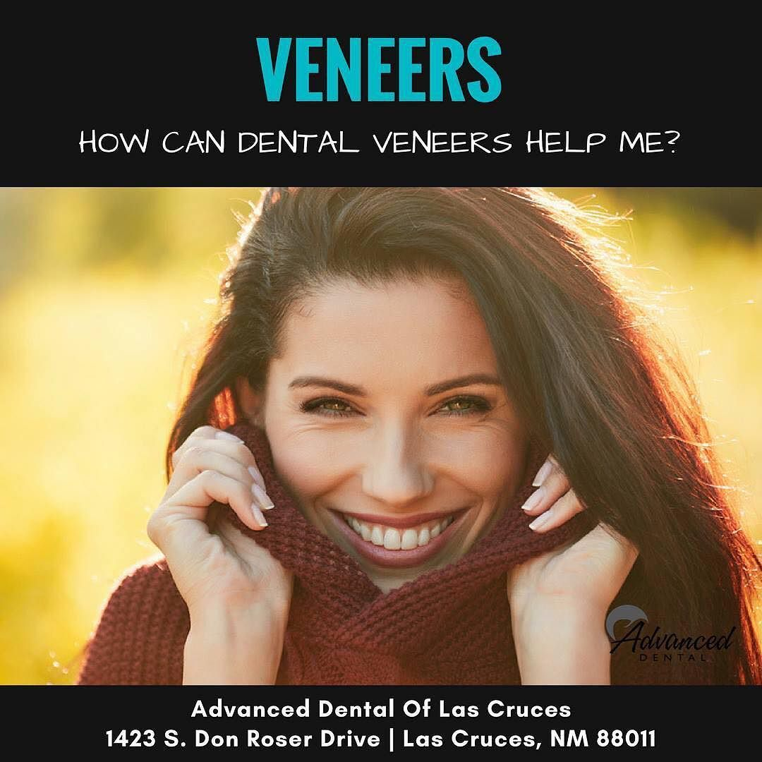 Dental veneers are able to cover minor cosmetic flaws that