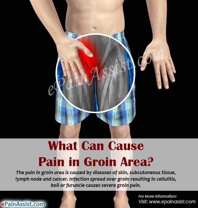 Pin On Pelvic Pain