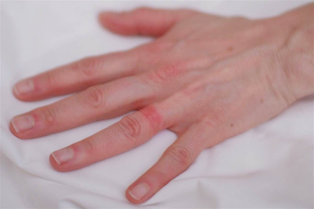 Wedding Ring Rash A Real Life Seven Year Itch Nbc News Wedding Ring Rash Wedding Ring Allergy Rash On Hands