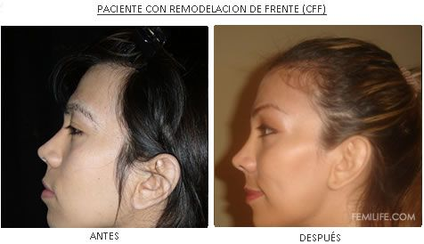 Was and cirugia femenizacion facial prompt reply