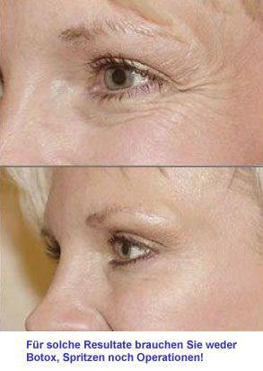 Hyaluronic Intensiv Das Naturliche Falten Frei Produkt Schonheitshacks Tipps Fur Die Haare Falten Gesicht