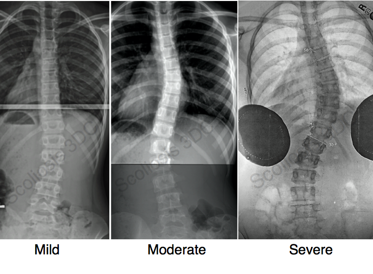 Is it mild, moderate or severe scoliosis? Mild A spinal
