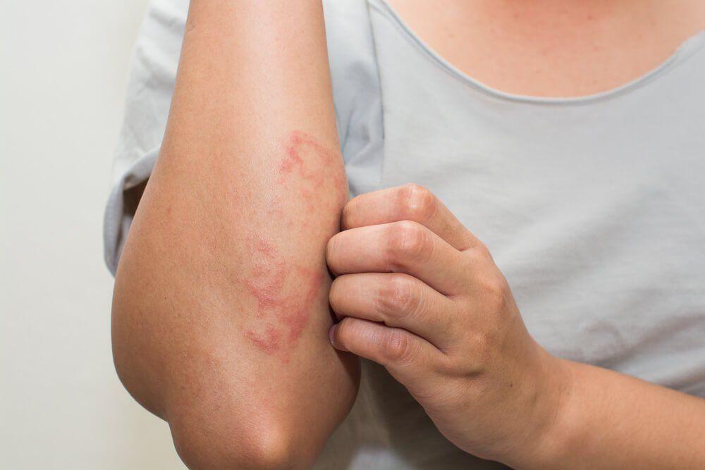8 Home Remedies For Skin Rashes That Your Body Will Thank You For