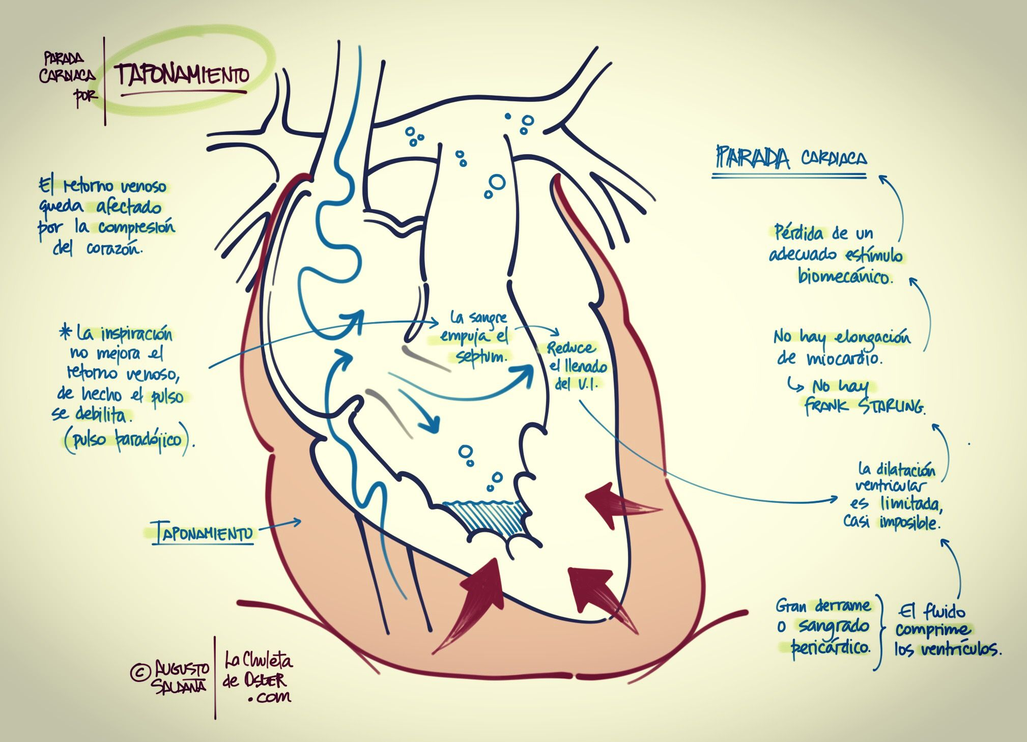 Parada cardiaca por taponamiento cardiaco. Dr. Augusto Saldaña M ...