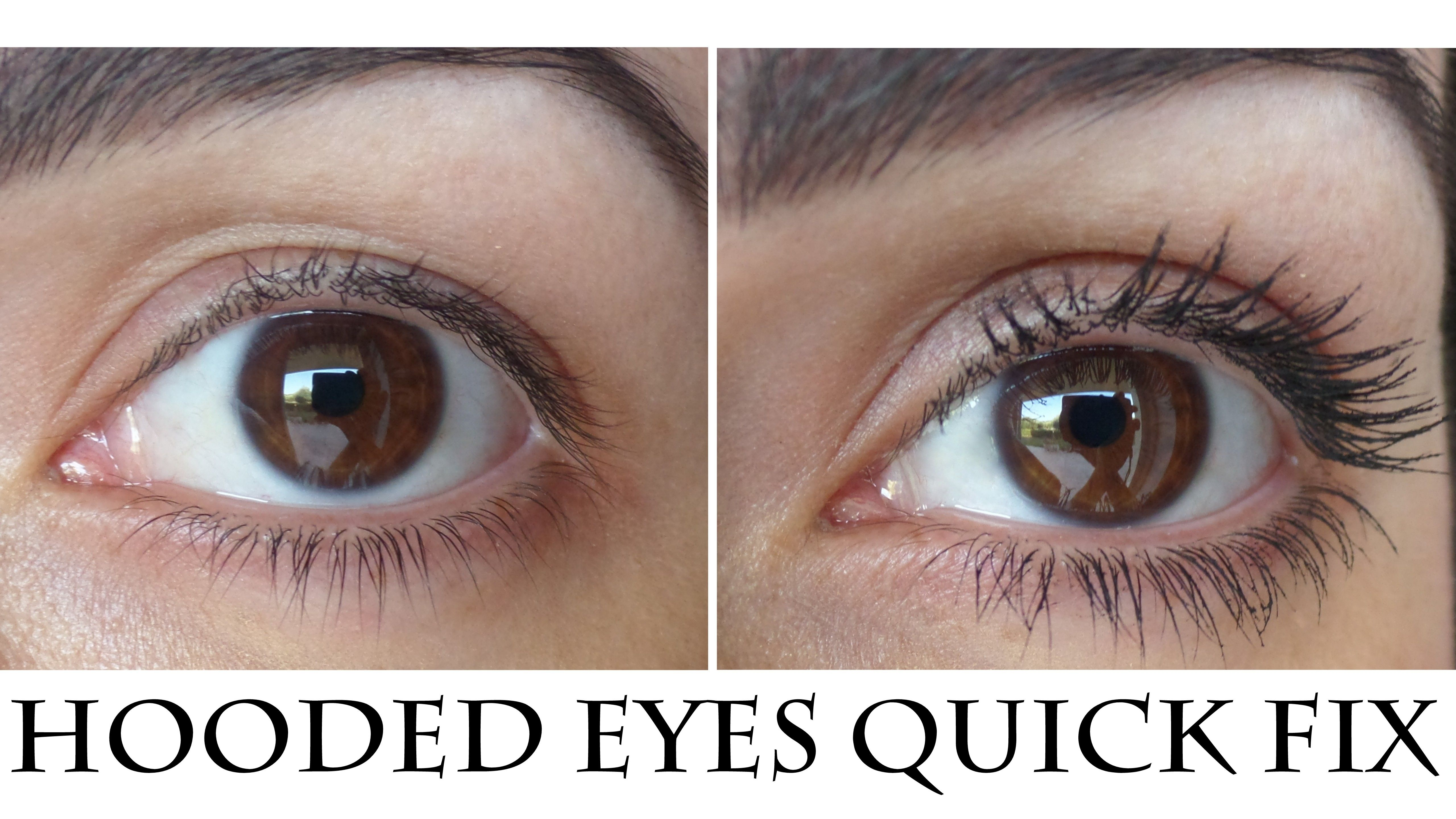 hooded droopy eyelid quick fix Droopy eyelids, Hooded