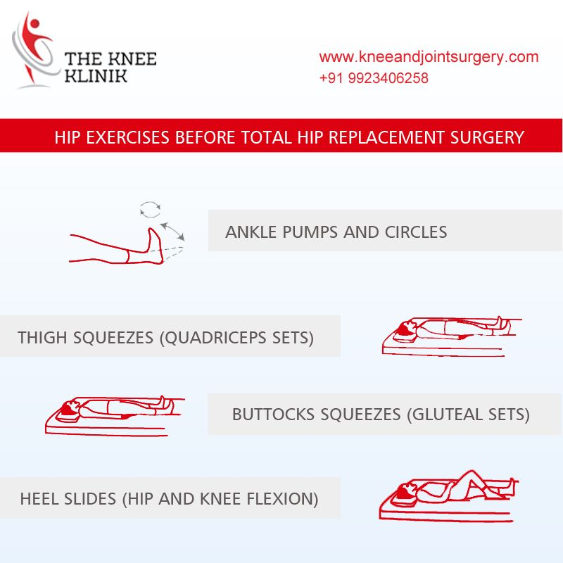 4 Most Important Exercises Before Totalhipreplacement Visit Www Kneeandjointsurgery Com Hip Hip Replacement Total Hip Replacement Hip Replacement Surgery