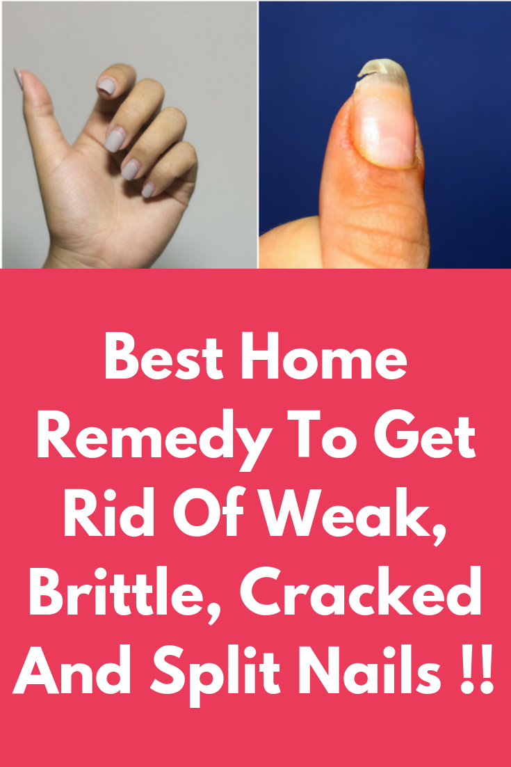Best Home Remedy To Get Rid Of Weak, Brittle, Cracked And Split ...