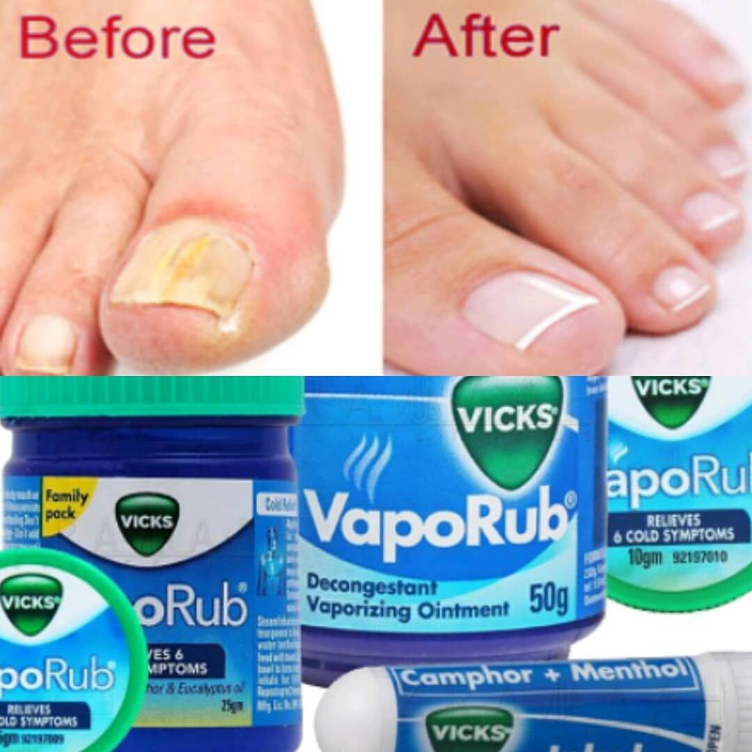 Vicks VapoRub helps treat nail fungus