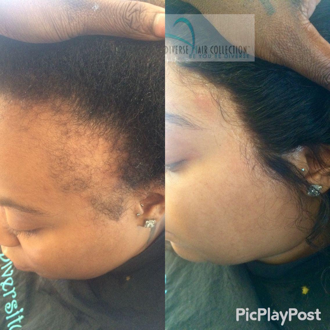 Full lace frontal before after lace closures pinterest full lace frontal before after pmusecretfo Choice Image