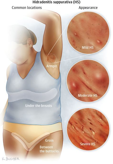 Having the right nutrition is essential to cure Hidradenitis Suppurativa the persistent auto-immune inflammatory