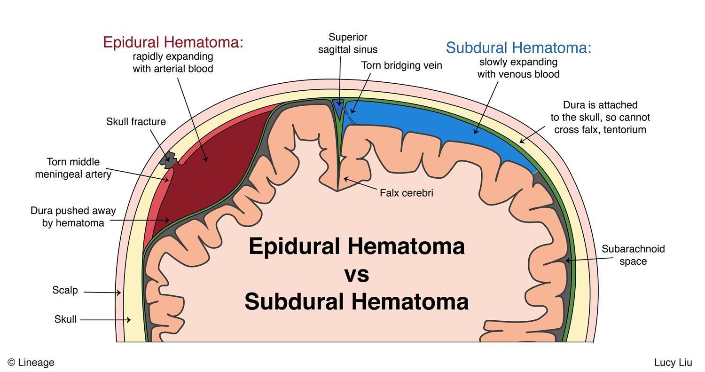 Epidural Hematoma Step2 3 Neurology Step 2 3 Medbullets