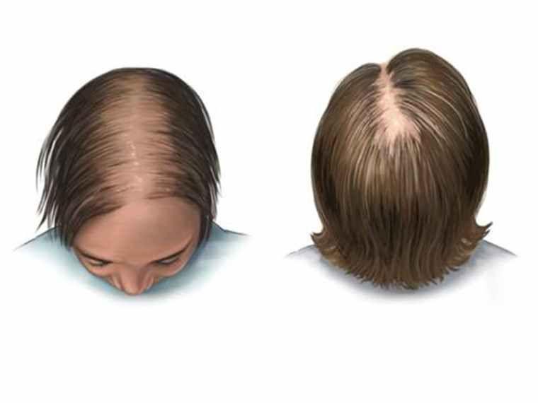 خلطة ناجحة و حل نهائي للانبات الشعر في مقدمة الرأس والتخلص من الفراغات وتساقط الشعر في 7 ايام Yo Hair Care Recipes Beauty Skin Care Routine Hair Braid Videos
