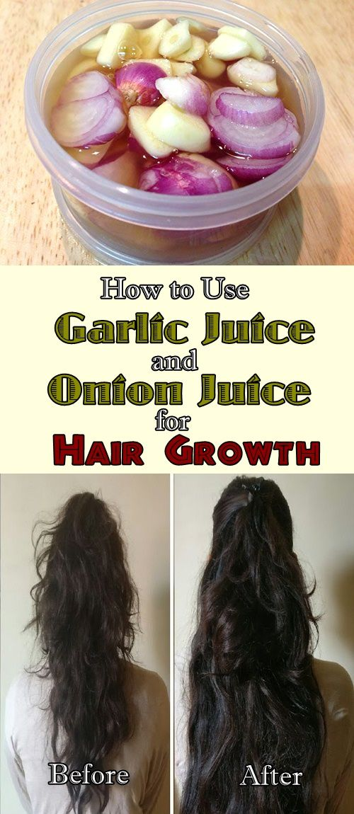 How To Use Garlic And Onion Juice For Hair Growth Sac Bakimi