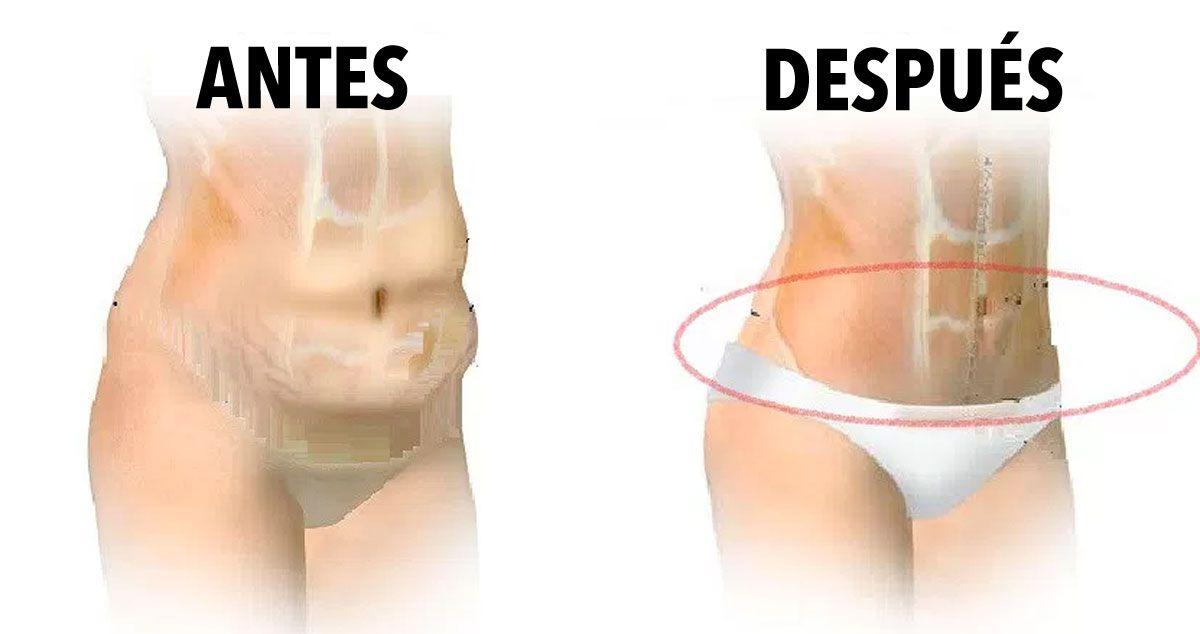 como quitar la grasa abdomen bajo