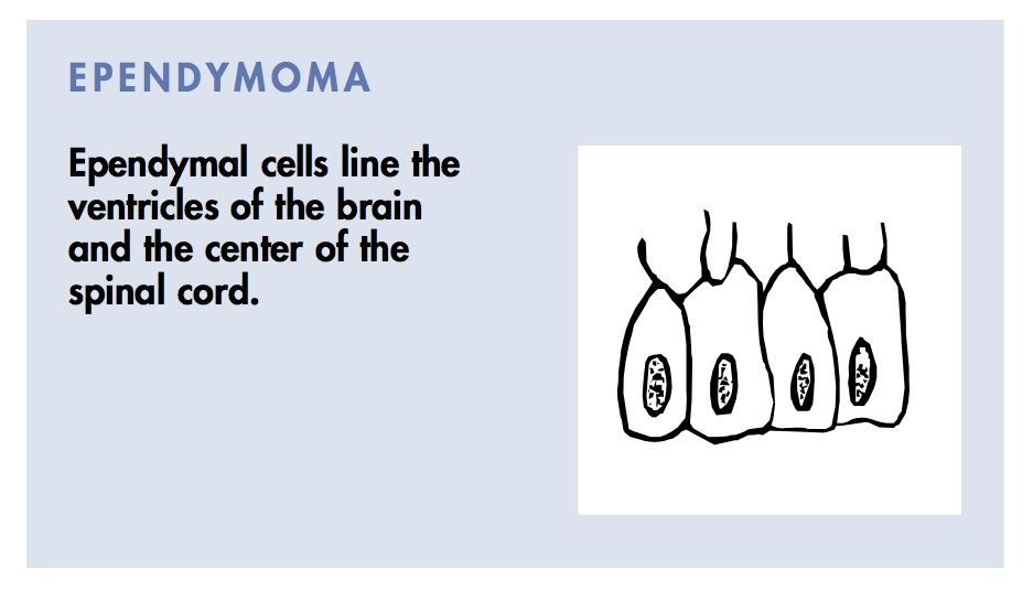 Ependymoma Cells Line The Ventricles Of The Brain And The Center