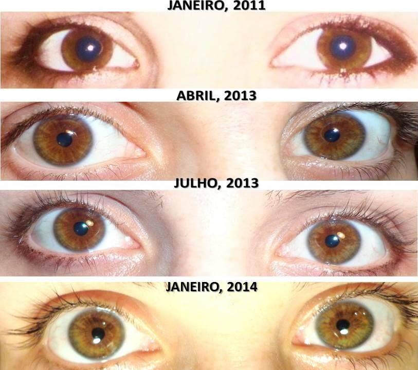 Medication That Changes Eye Color