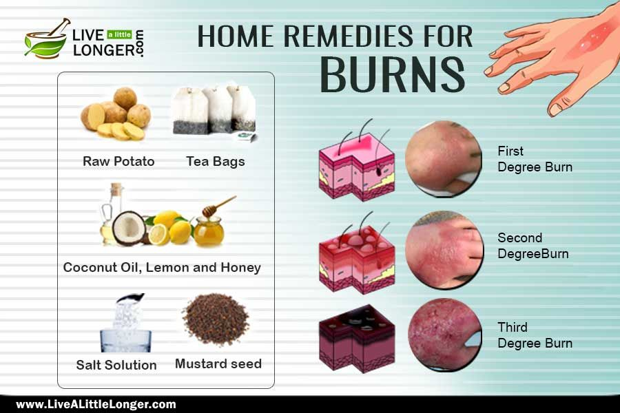 Home Remedies To Treat A Burn Home Remedies For Burns Home