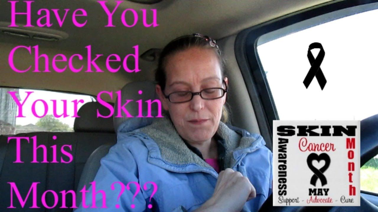 Have You Checked Your Skin This Month???
