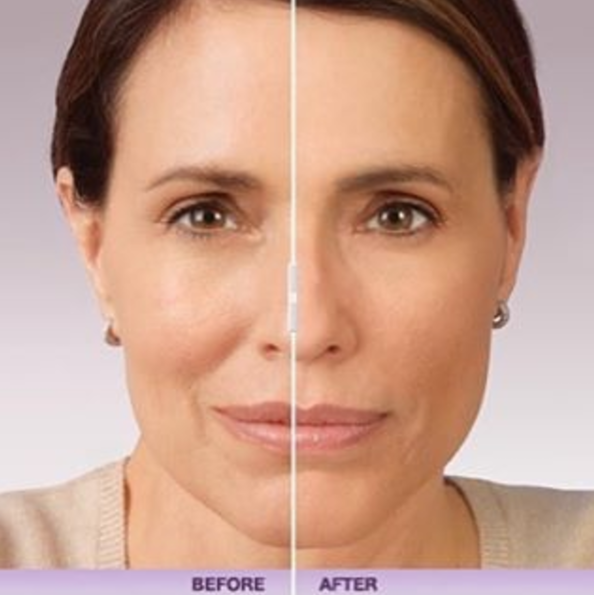 How much do fillers cost as I get older? Visit: www.myethosspa.com ...