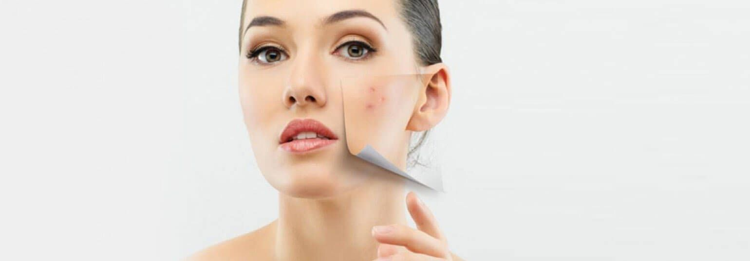 Wondering how can you get rid of dark spots on skin quickly Get