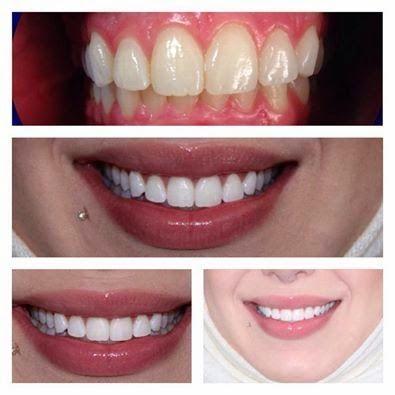 أناقة مغربية أفضل وأسرع طريقة لتبييض الاسنان وازالة رائحة الفم Blog Posts Blog Post