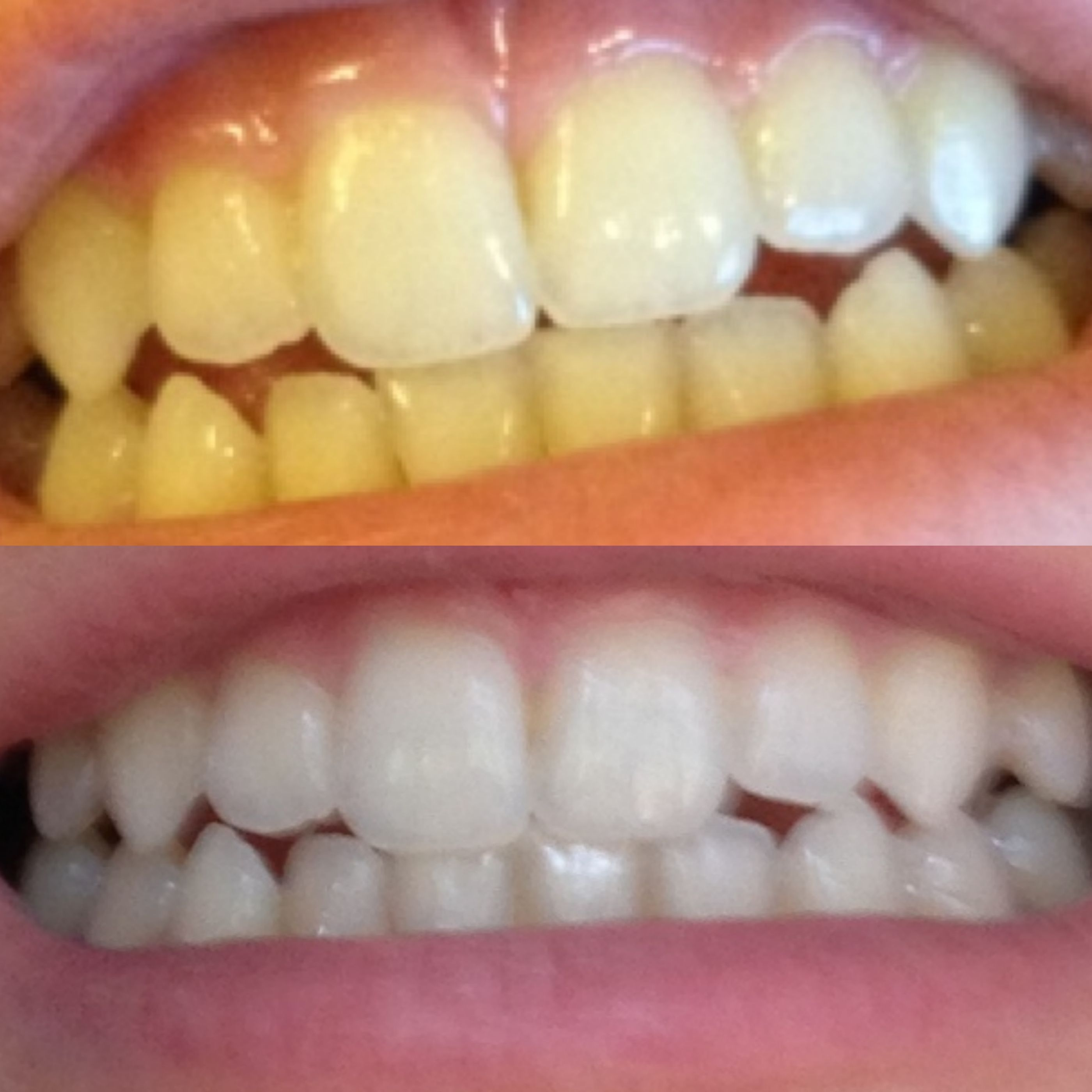 Pin On Charcoal Teeth Whitening