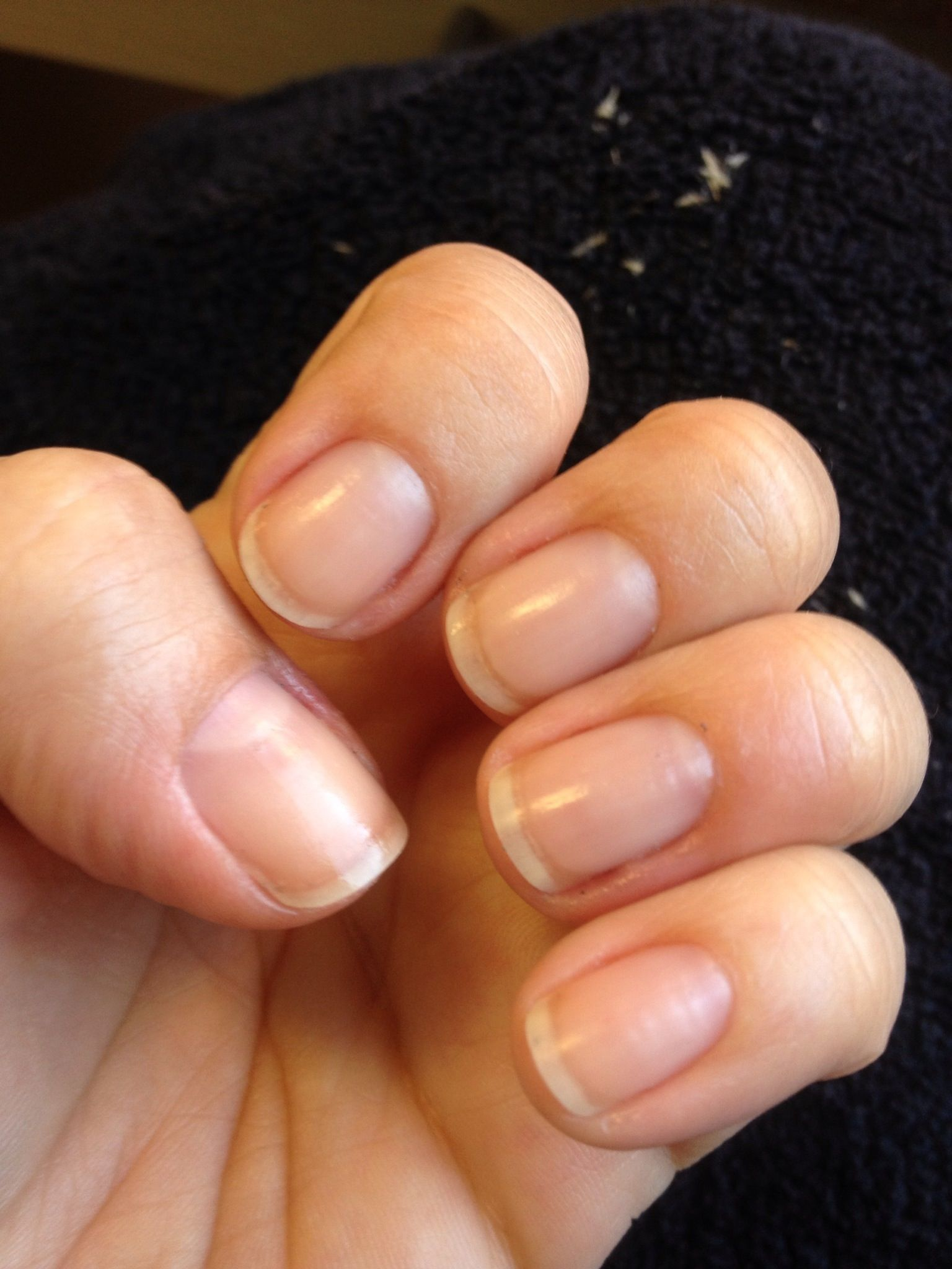 Go with garlic for stronger nailsAdd chopped garlic to a bottle of ...