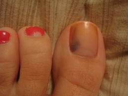 Give your toes a good check before a pedi-- melanoma can start under ...