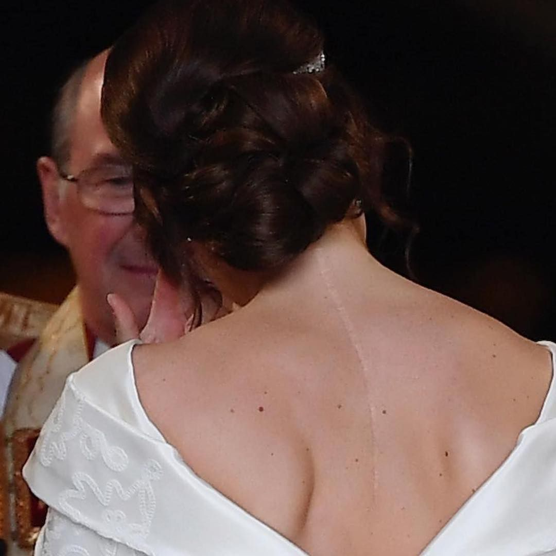 Be Proud Of Who You Are Princess Eugenie Today Sharing Her Scar With The World Don T Hide Who You Are As Yo Eugenie Wedding Princess Eugenie Wedding Dresses [ 1080 x 1080 Pixel ]