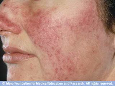 Rosacea On Light Skin Rosacea Treatment Rosacea Symptoms