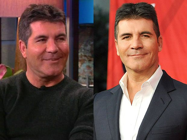 Simon Cowell Before And After Plastic Surgery Facelift, Botox