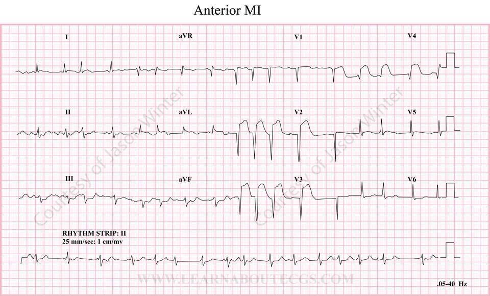 Pin by Jason Winter (ECG Educator). on 12-Lead ECG/EKG ...