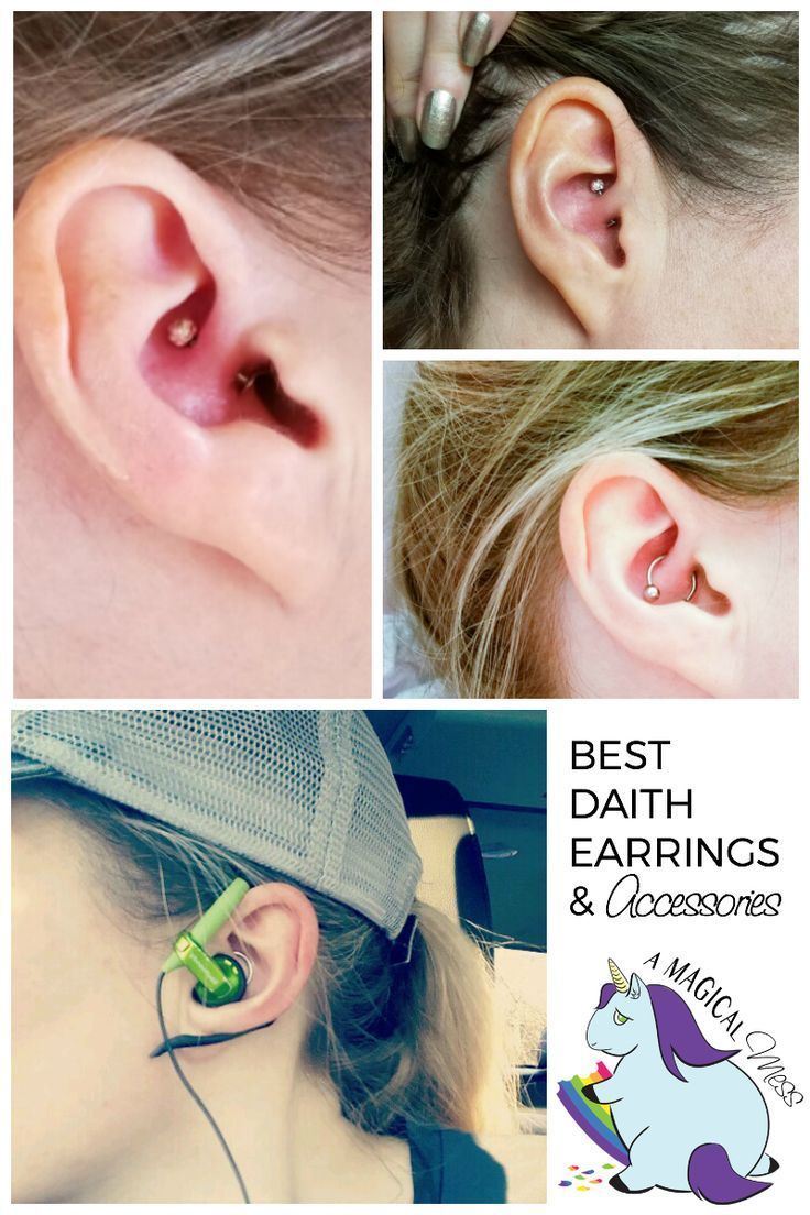 Nose piercing day 3  Accessories for the Migraine Piercing and Best Daith Earrings for