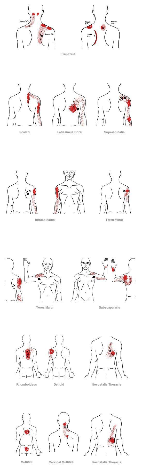 punto de disparo patrón de dolor referido para la espalda media ...