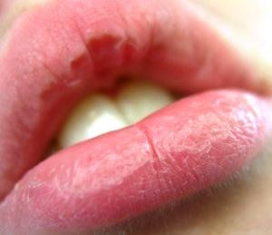 Diy 12 Ways To Protect Your Lips From Chapping Cure For Chapped