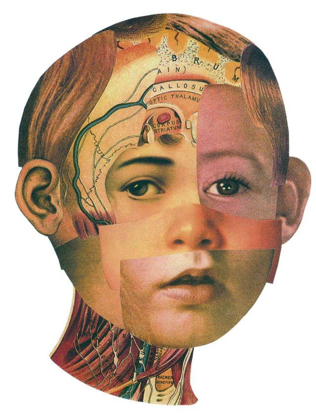 Melissa Grimes: Cover collage illustration for Johns Hopkins Magazine about fixing childhood facial deformities.