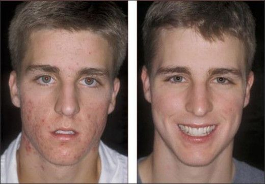 How To Cover Acne For Men And Women Before And After Rosacea Treatment Acne Remedies Best Acne Treatment