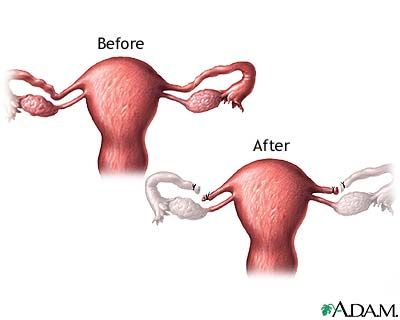 What Does Having Your Tubes Tied Mean Female Sterilization Tubes Tied Recovery Tubal Ligation Side Effects