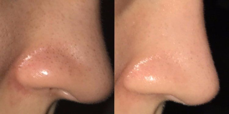 How To Get Rid Of Whiteheads On Nose Reddit