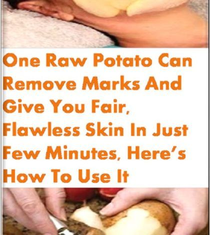One Raw Potato Can Remove Marks And Give You Fair Flawless Skin In Just Few Minutes, Here's How To Use It