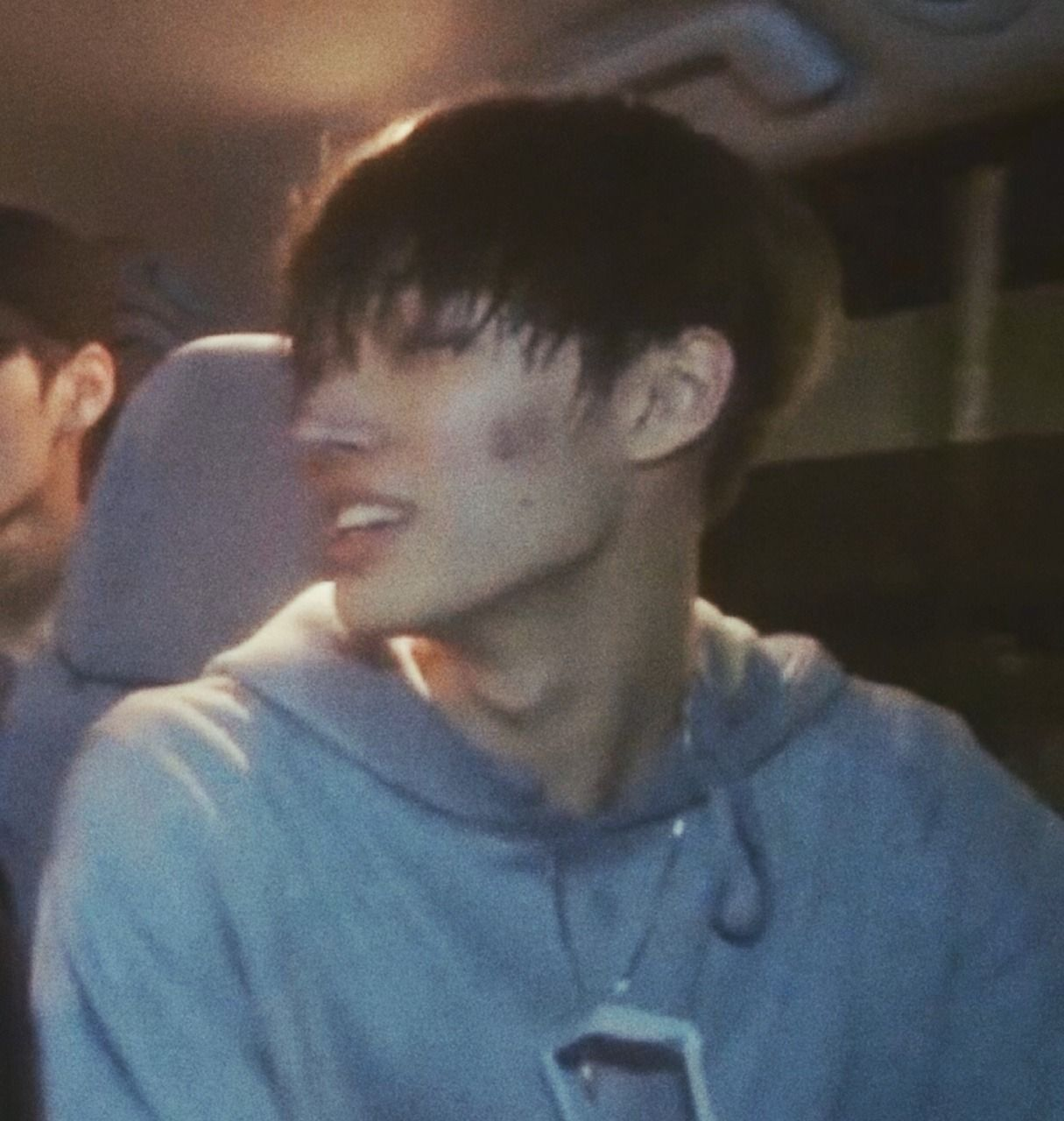 Can We Get A Yay For Mingi S Beautiful Bare Acne Songs Kpop Memes Bare Face