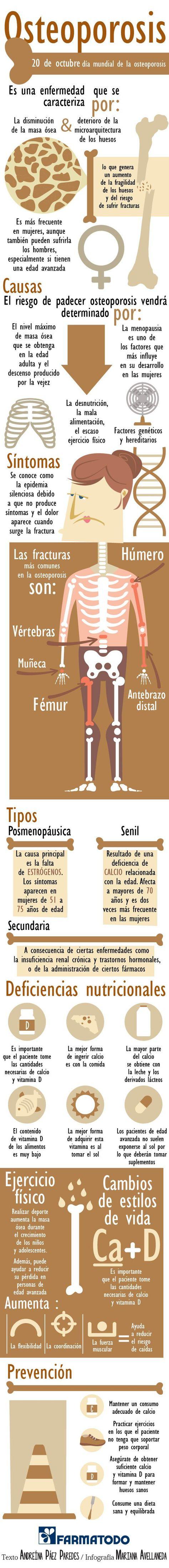 34++ Factores de riesgo para padecer osteoporosis viral