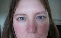 Remedios caseros para la cara roja