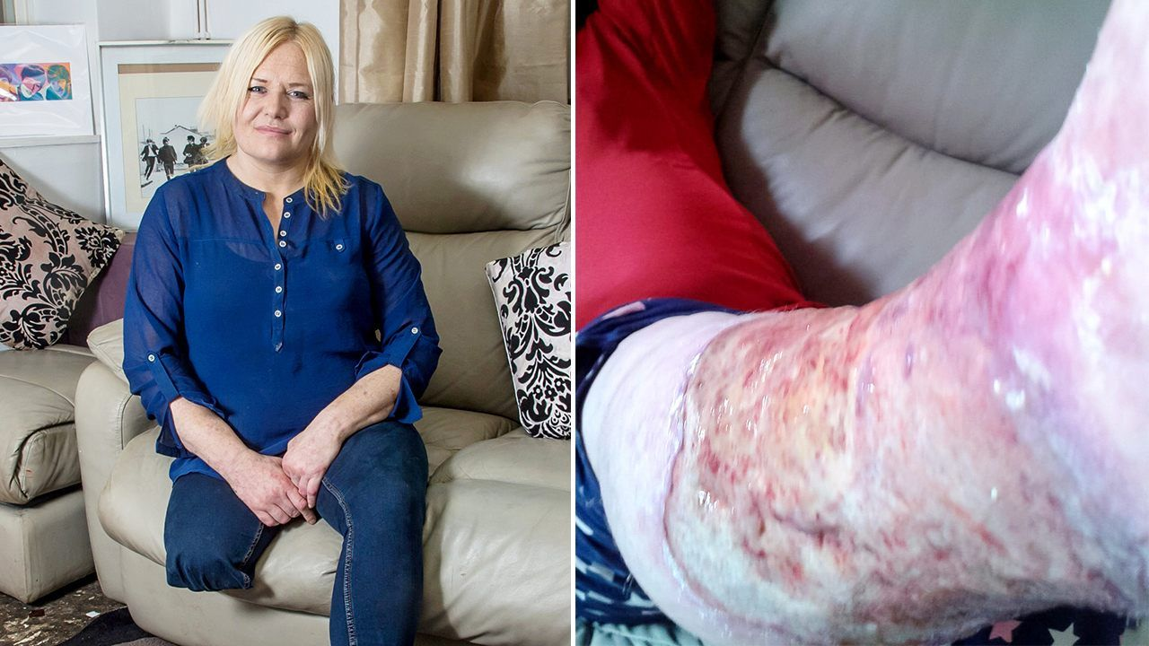 Woman Has Leg Amputated After Infection From Shaving Cut News