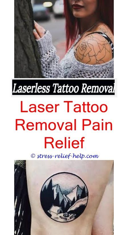 Tattoo Removal Omaha.Does Laser Removal For Tattoos Work
