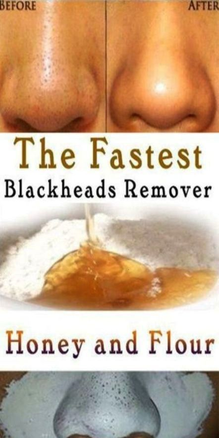#fitnesstipsproducts #blackheads #because #genohis #fitness #careful #lasalle #discuss #health #idea...