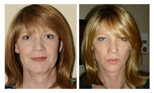Before And After Face Exercises