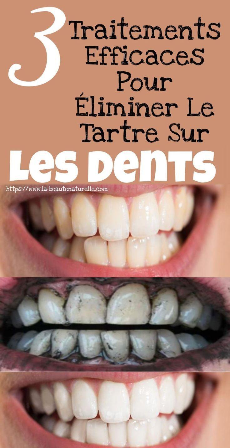 L'un des problèmes de santé bucco-dentaire les plus courants est l'accumulatio... L'un des problèmes de santé bucco-dentaire les plus courants est l'accumulatio...,