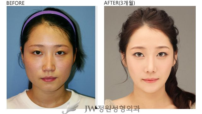 ff1aaea05da0f254c2eaa7f587591a53 - How Much Is It To Get Plastic Surgery In Korea