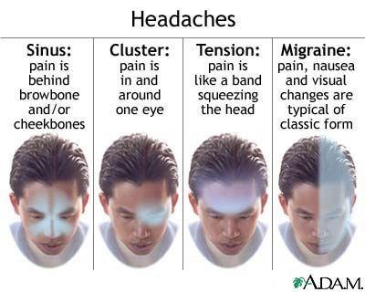 pressure points for headache